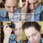 How to Cover Melasma and Skin Discolorations