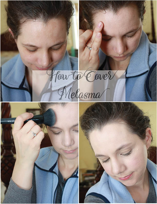 how-to-cover-melasma